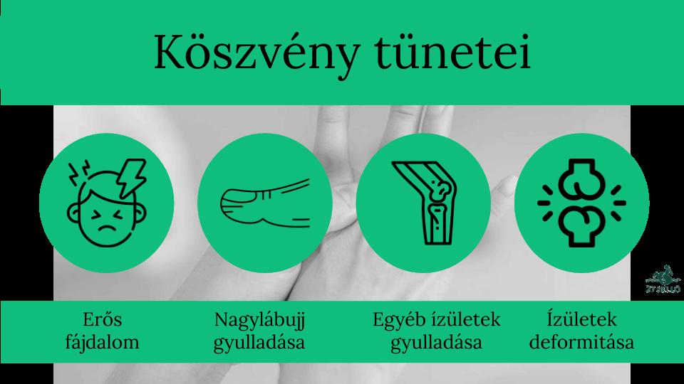 kattintson ízületek milyen gyógyszereket)