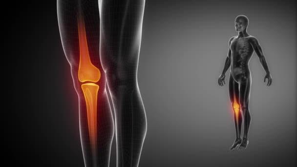 Fájdalom a térd alatt hátul, amikor hajlítás: okai, tünetei és kezelése