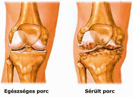 fájdalom a hüvelykujj lábízületében csípő fájdalom, hogyan lehet megszabadulni