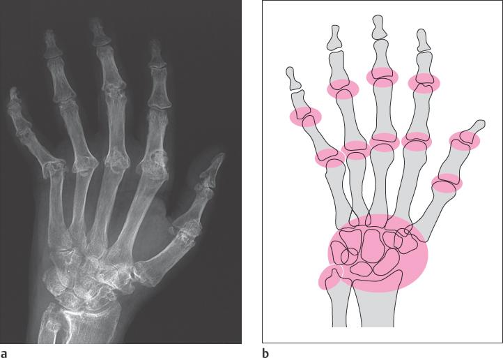 rheumatoid arthritis radiology findings)