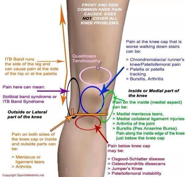 arthrosis deformans artrosis kezelés