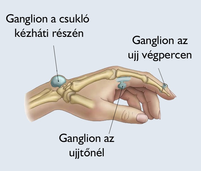csípő eltávolítási kezelés)