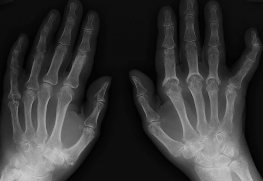 psoriatic arthritis radiology)