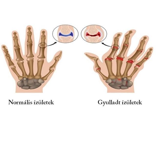 a bal térdízület ízületi gyulladása hogyan kell kezelni a leghatékonyabb fájdalomcsillapítók ízületi fájdalmak kezelésére