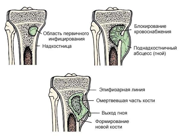 mi a deformáló artrózisa a csípőízületekben medence és boka ízületei