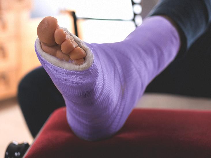 láb törések boka törés után