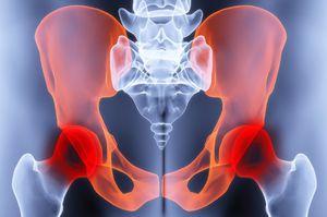 mi a csípőízület kezelésének coxarthrosis)