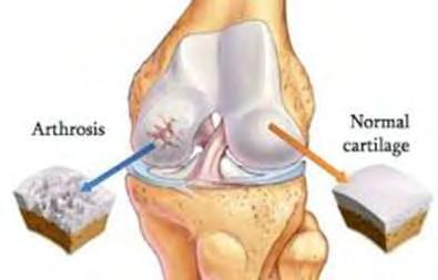 A térdízületek áttekintése arthrosisra - gyógyszerek, ajánlások