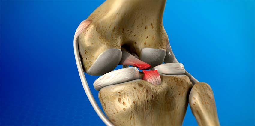 fájdalom a térd sérülése után