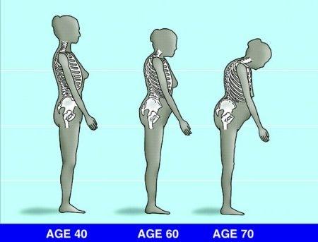 negatív ízületi fájdalom reumatikus tesztek ízületi betegség gyógyszer ár