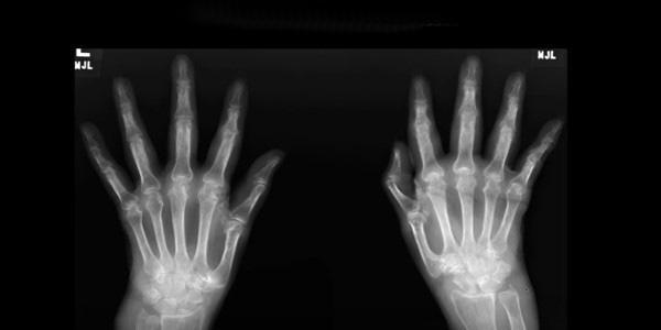 Ízületi fájdalom, a mutatóujj - kezelés jobb hüvelykujját