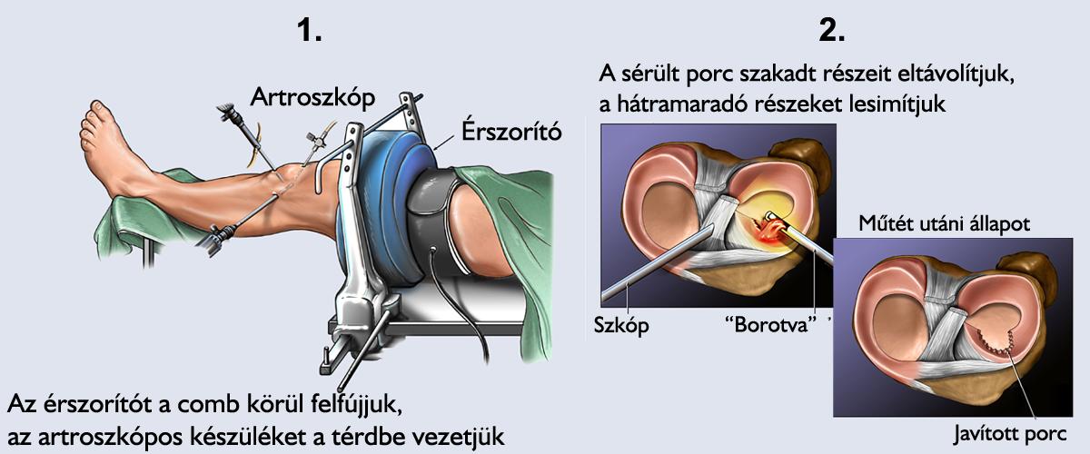 a térd plasztikai műtét utáni gyógyulás