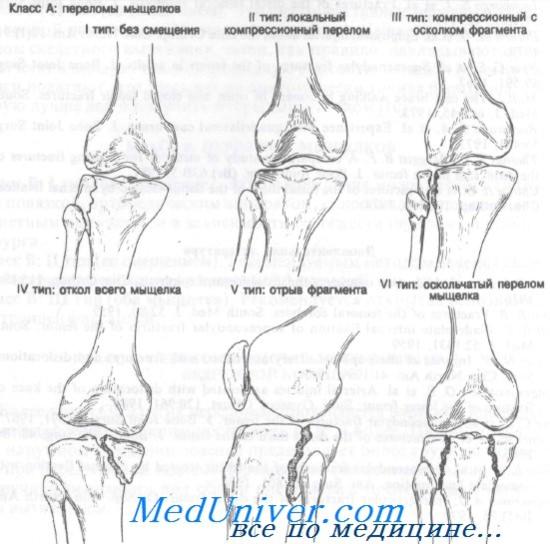 a térdízület gyakorlati komplexe artrózisának kezelése