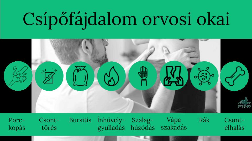 standard a csípőízületi gyulladás kezelésére)