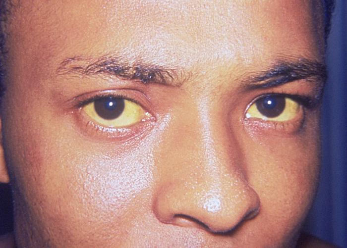 milyen ízületi fájdalom a hepatitis c-vel