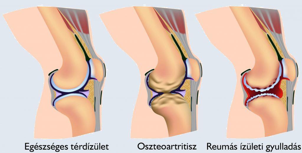 a térd artritiszének első jelei