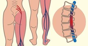 csípőideg-gyulladáskezelés