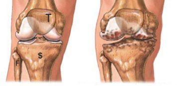 térd artrosis fogalma