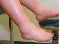 a láb ízületeivel kapcsolatos problémák
