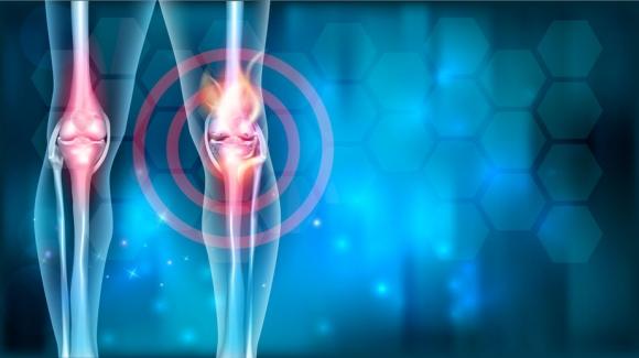a distalis interfalangeális ízületek ízületi gyulladása