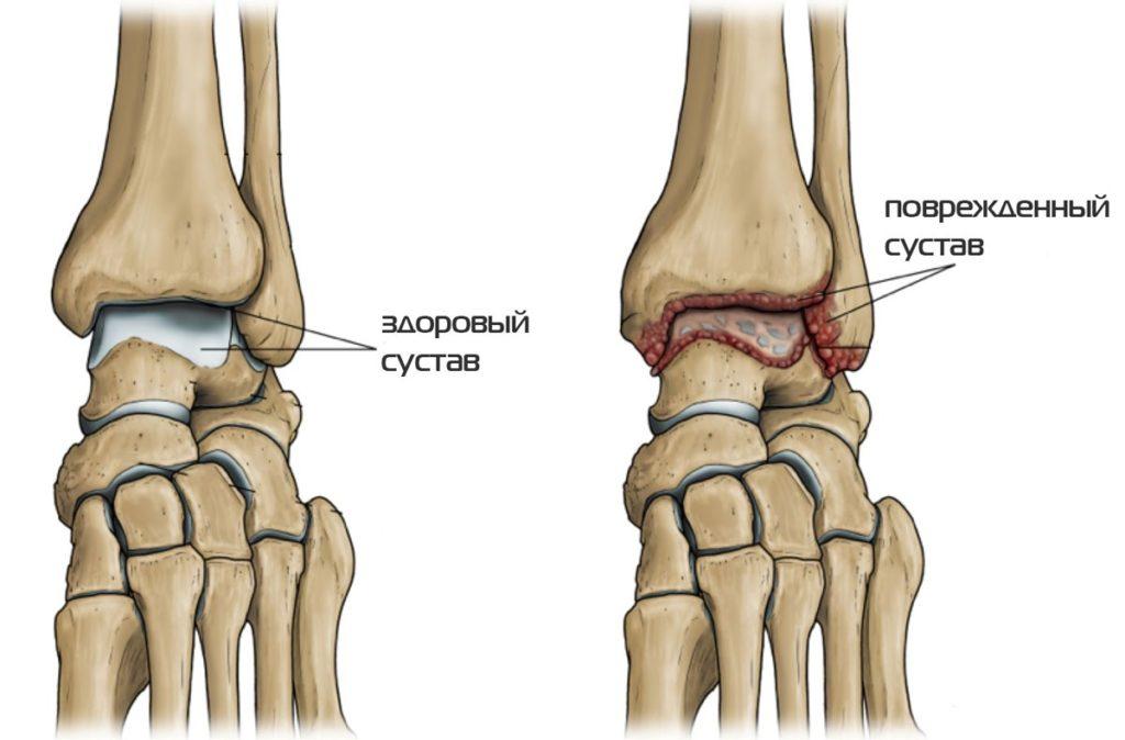 a lábak ízületeinek deformáló artrózisa fájdalom a vállízület megütése után