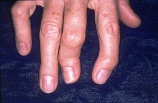 ízületi fájdalom lábak mit kell tenni