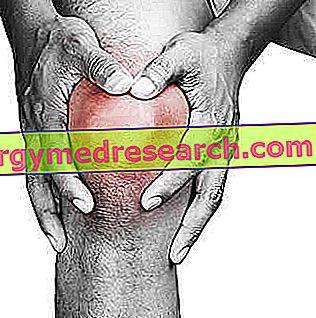 Gonartrózis • Tünetek És Térdízületi Gyulladás Kezelése 🚑 sebinko.hu