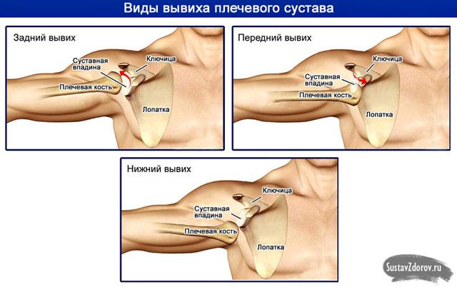 a vállízület uhf kezelése)