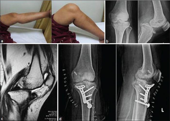 a térdízület kezelésének medialis ligamentuma részleges törése
