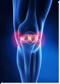 térd ízületi költségek csípő trochanteritis kezelési áttekintése