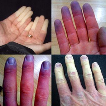 a hüvelykujj együttes kezelése)
