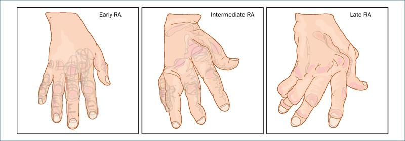 hogyan lehet kezelni a gerinc artritiszét a vállízület polyarthritis kezelése