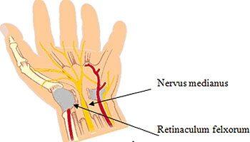 fertőző ízületi tünetek és kezelés