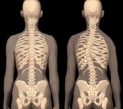 csigolya-ízületek, artrózis tüneteivel)