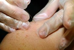 a térd artrózisával felszaporodhat)