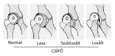 csípő dysplasia serdülők kezelésében