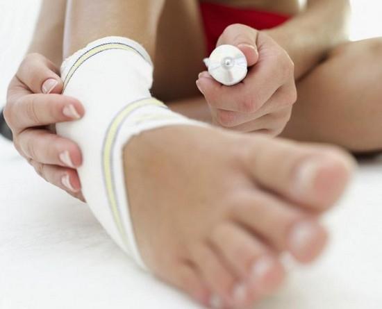 Csípőgyulladás | Tünetek, diagnózis, ok és kezelés