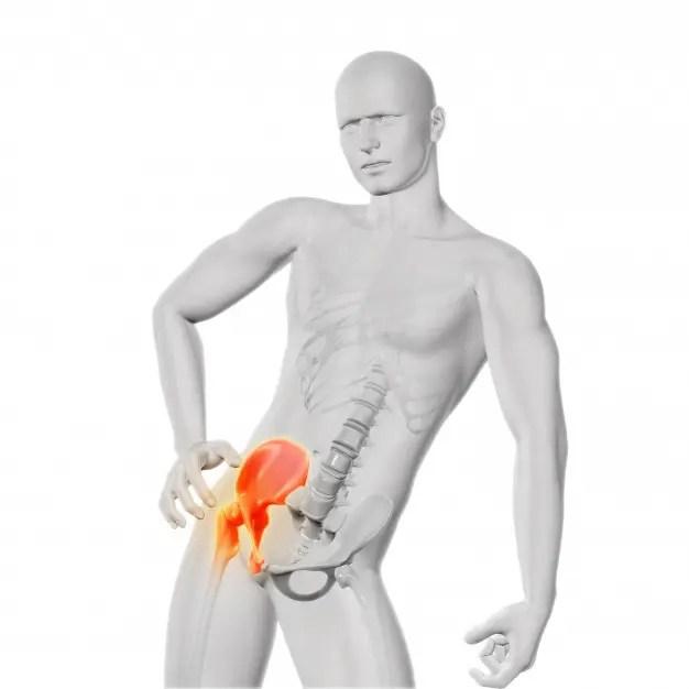 csípőfájdalom, amely áthalad a hát alsó részén deformáló artrózis a vállízület 1-2 fokos