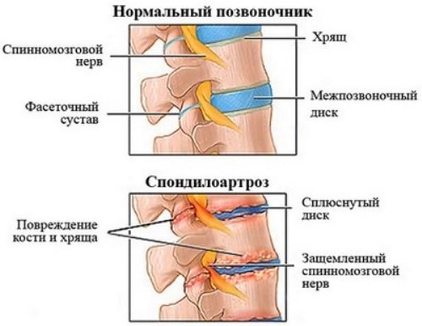 1 fokos térdízület artrózisa mi ez)