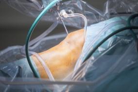 Meniszkusz műtét