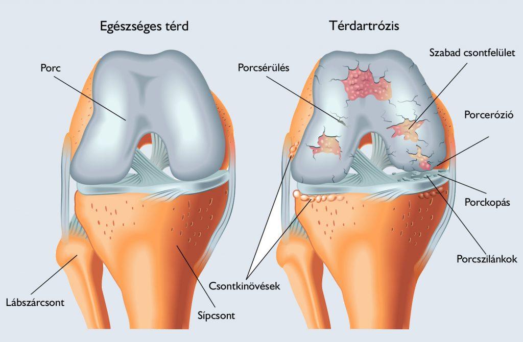 fájdalom és repedések a térdízületekben