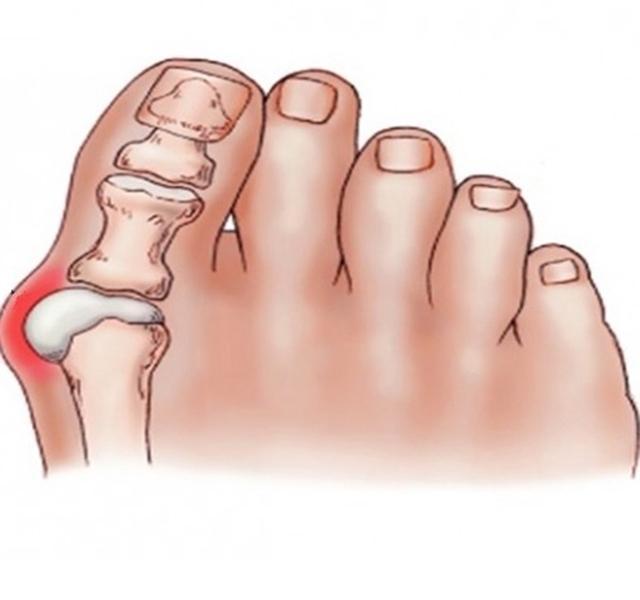 fáj a nagy lábujj ízületében