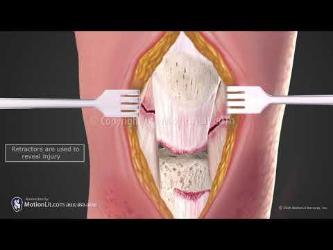 osteoarthritis crueval kezelés)
