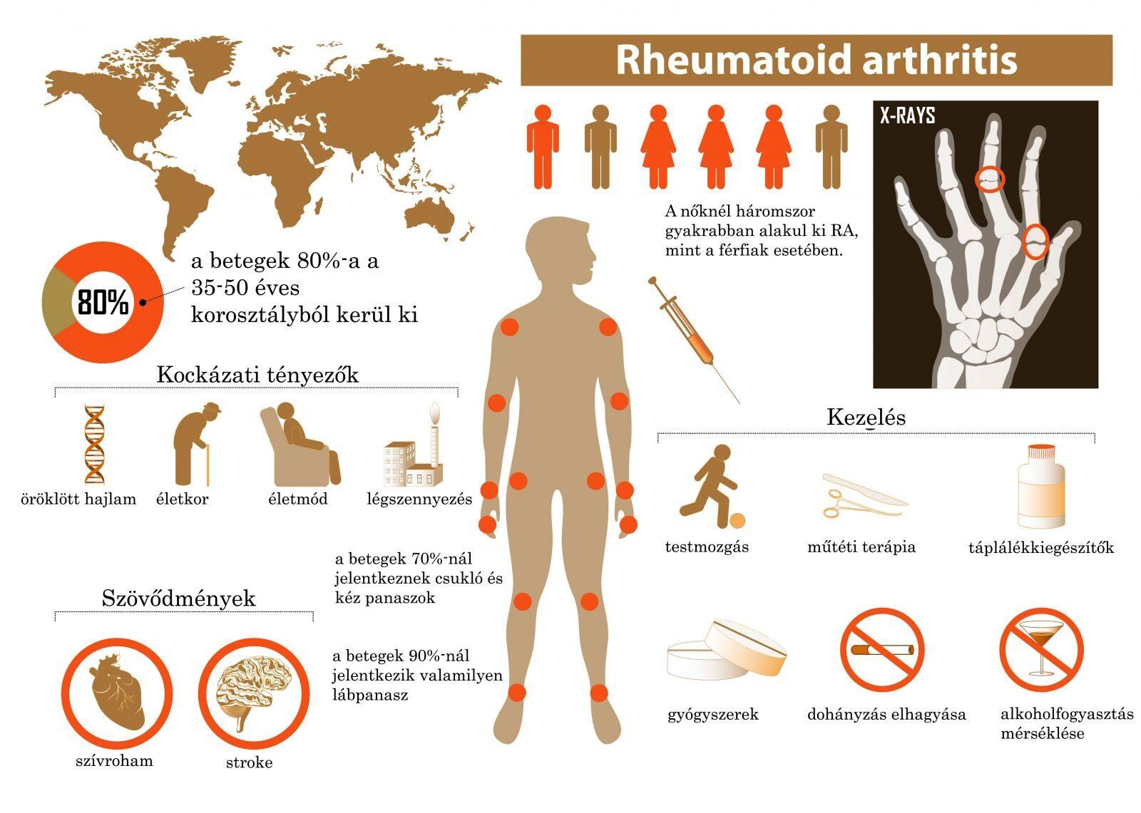 ízületek fáj a reumatológia