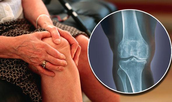 artrózis térd osteoarthrosis