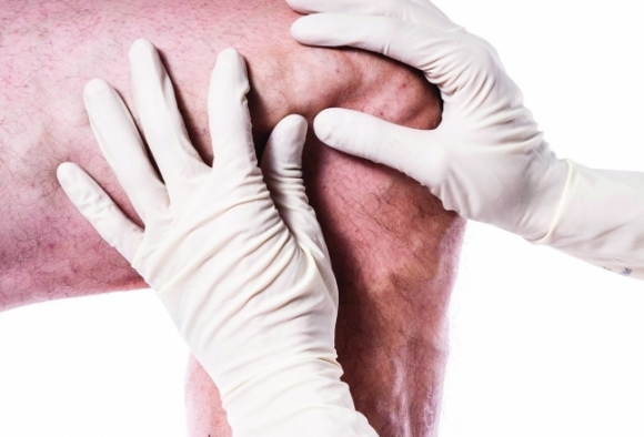 vénás ízületi kezelés)
