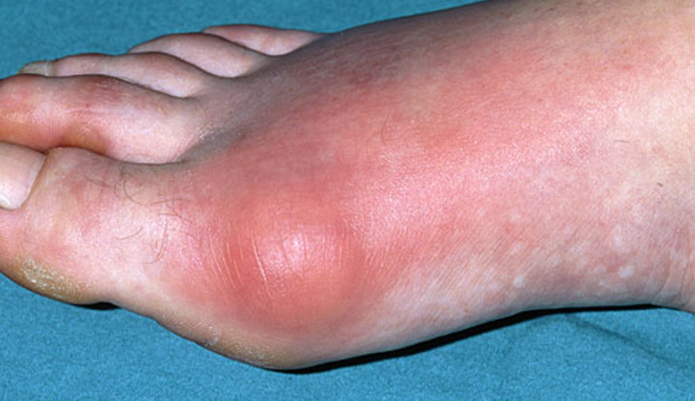 a lábak ízületeinek gyulladása, tünetei és kezelése)