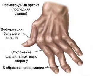 fájdalom a vállízületeken)