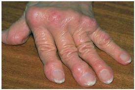 reumás gyulladás kezelése