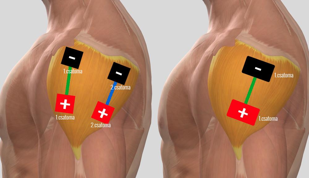 a bal vállízület kezelése myositis esetén)